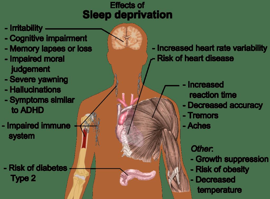 sleep-effects_of_sleep_deprivation